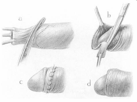 Польза обрезания