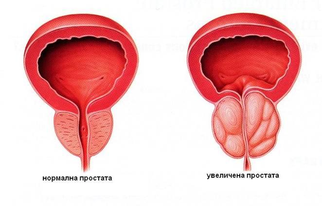 mozhno-li-masturbirovat-pri-lechenii-hlamidiy