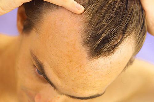 Ученые предостерегают мужчин от приема определенных препаратов от облысения