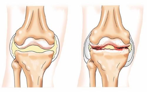 У вашей мамы болят колени Диета и упражнения от остеоартроза!