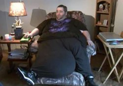 Мошонка весом 45 кг лишила мужчину радостей секса