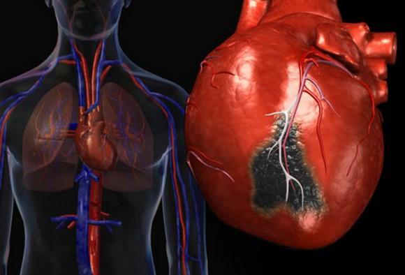 Ученые: проблемы с эрекцией могут указывать на приближение инфаркта