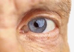 У некоторых мужчин прием виагры может ухудшить зрение