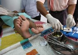 Обрезание мальчиков связано с риском развития аутизма
