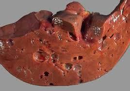 Кисты в печени: симптомы и лечение