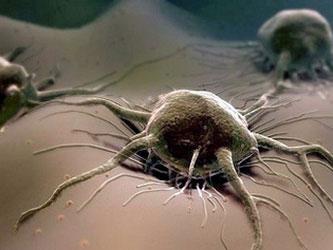 Мужское бесплодие как фактор риска развития онкологических заболеваний
