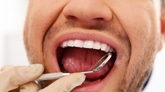В лечении простатита поможет стоматолог