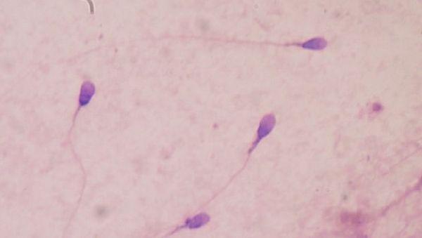 Ученые воссоздали сперму из клеток кожи