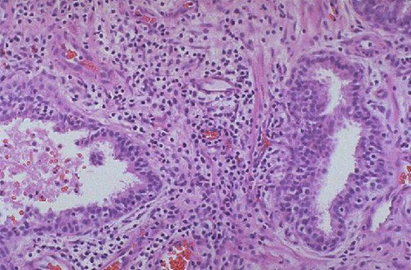 Причины появления инфекционного простатита