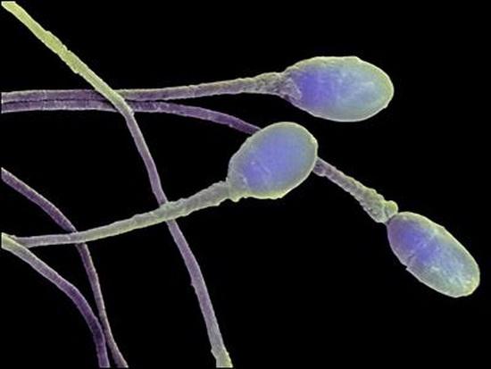 Cперматозоиды научились выращивать в лаборатории
