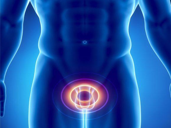 Простатит: симптомы и лечение