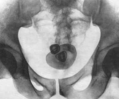 Почему увеличивается простата