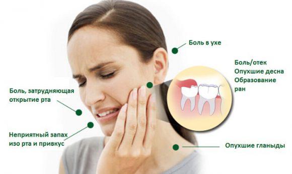 Как устранить болевые ощущения при прорезывании зубов мудрости?
