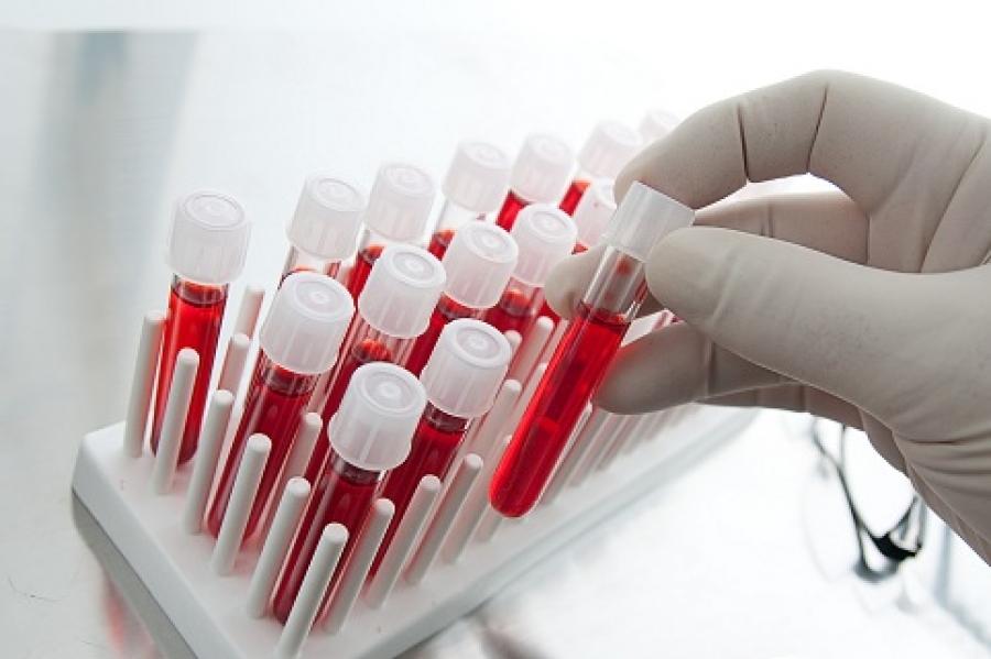 Группа крови влияет на риск эректильной дисфункции