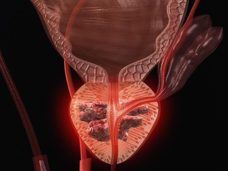 Сексуальная активность и рак простаты