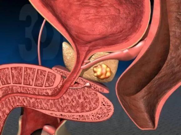 Заболевания простаты: диагностика и профилактика