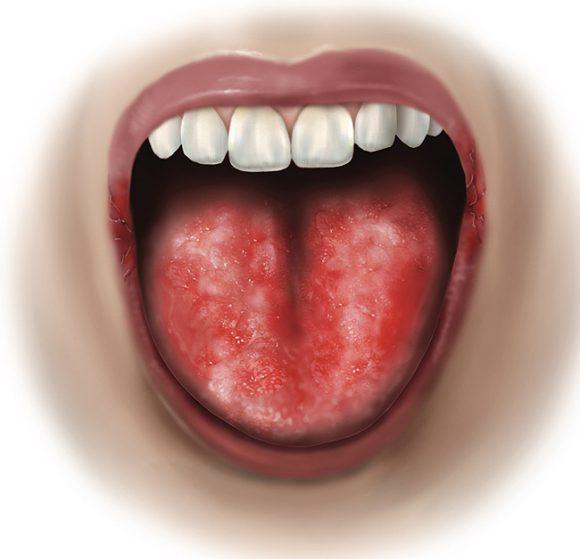 Заболевания полости рта могут привести к импотенции и ишемической болезни сердца
