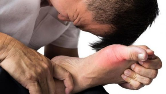 Лечение подагры у мужчин защитит их от импотенции