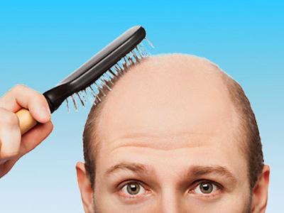 Боремся с облысением и сединой: 6 ошибок, которые могут стоить тебе волос