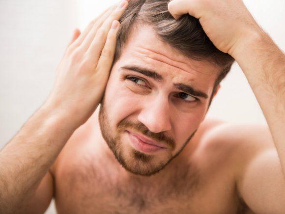 Облысение у мужчин: причины и методы лечения
