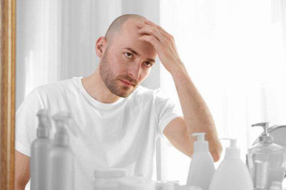 Могут ли после облысения вырасти новые волосы?