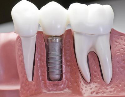 Импланты зубов в Москве. Виды и цены.
