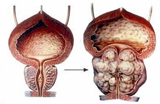 Гиперплазия простаты – нормальное явление для всех мужчин