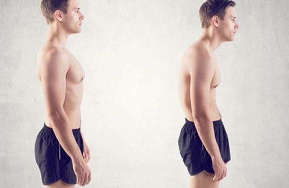 Плохая осанка ухудшает половое здоровье