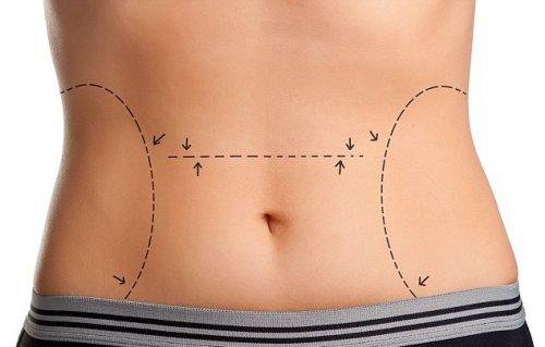 Жир из живота поможет вылечить недержание у мужчин