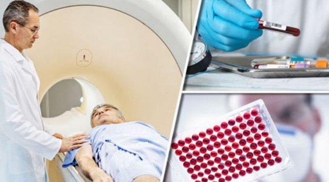 Ученые неожиданно вылечили мужской рак гормонами