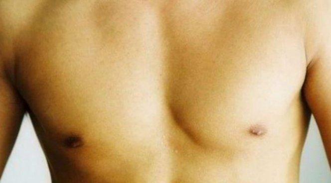 Три главных причины болей в сосках у мужчин