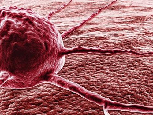 УЗИ не поможет диагностировать рак простаты — врачи