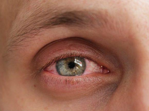 Виагра чуть не лишила мужчину зрения