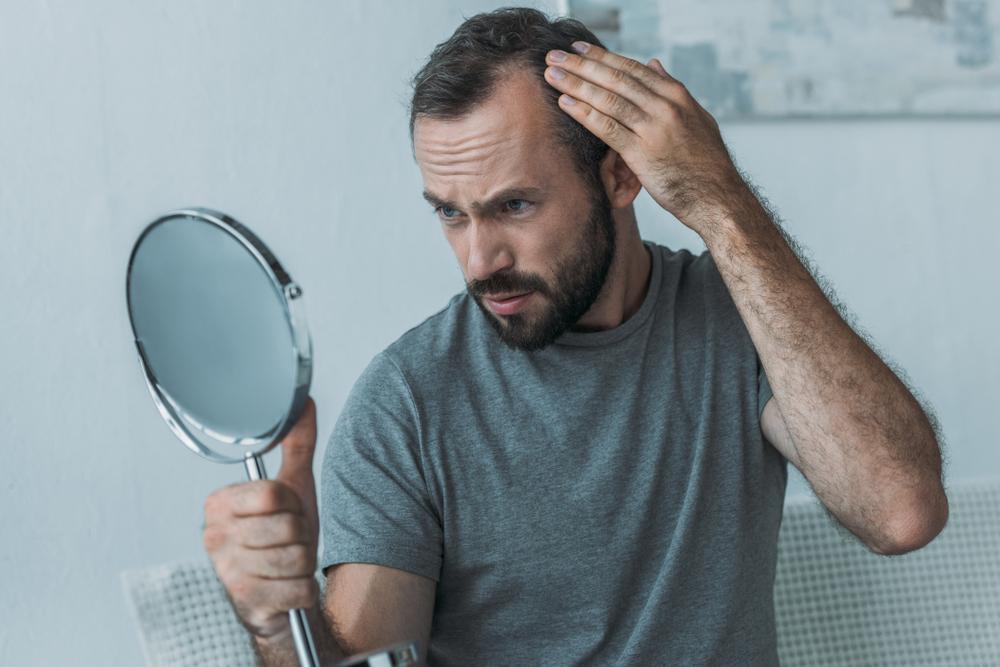 Диагноз «алопеция»: пересаживать ли волосы?