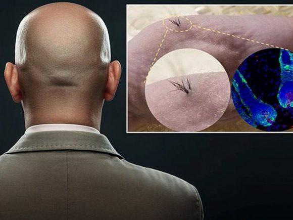 Стволовые клетки помогут победить облысение