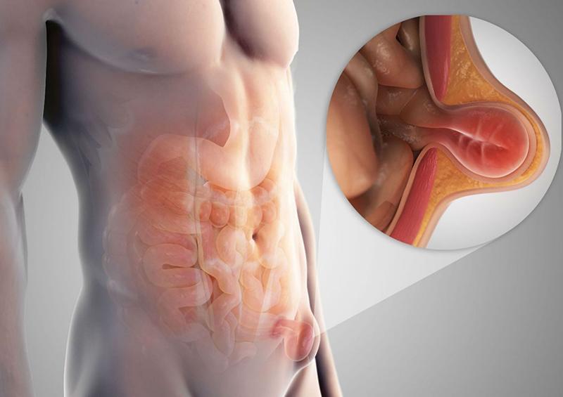 Лечение паховой грыжи у мужчин: симптомы, операция и реабилитация