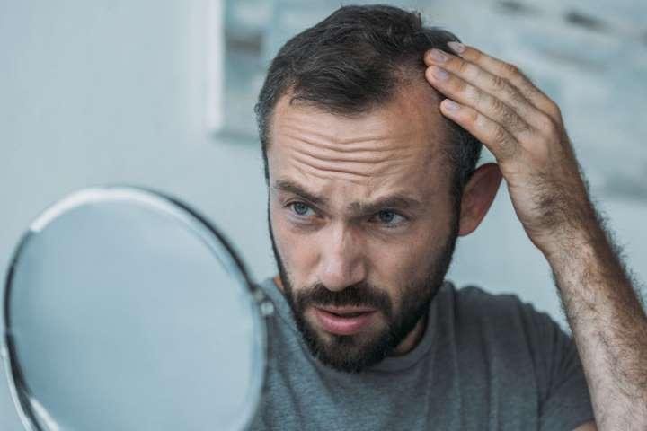 Расстройства организма, из-за которых выпадают волосы