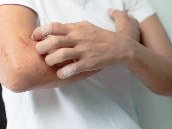 Врач-дерматолог объяснила, почему опасен беспричинный кожный зуд