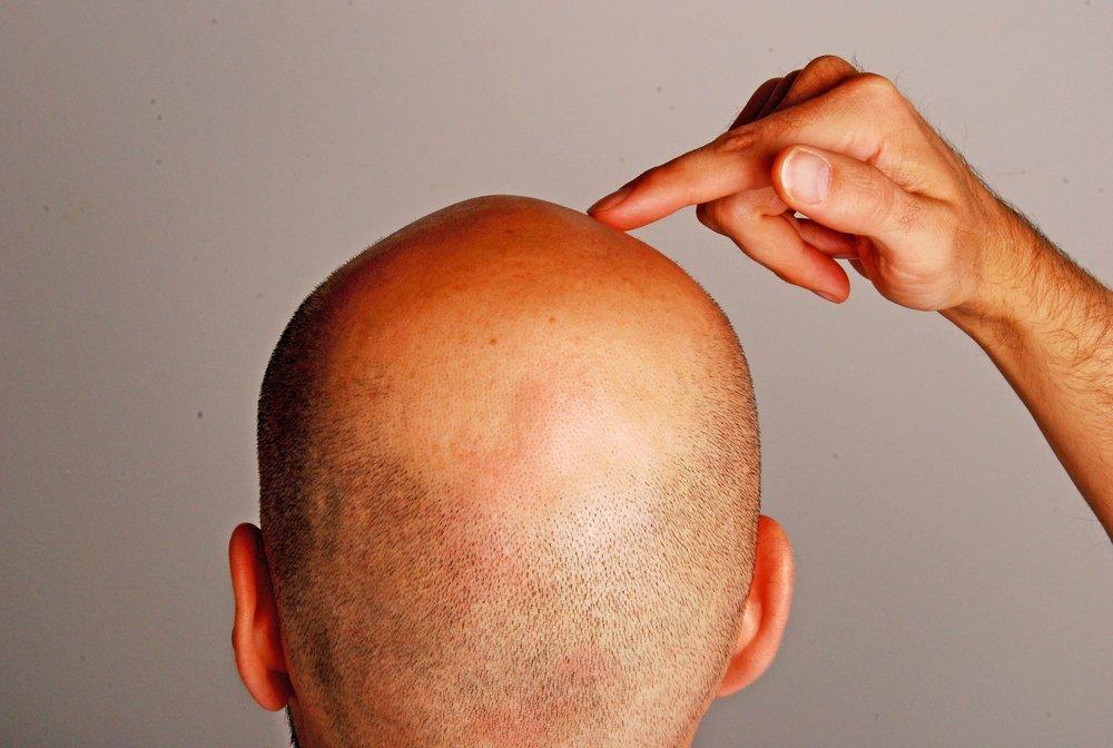 Лысые мужчины чаще заболевают раком простаты