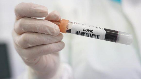 Тяжелые случаи COVID-19 могут влиять на качество мужской спермы — исследование
