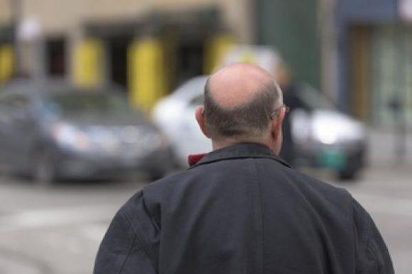 Ученые: лысые мужчины реже болеют раком простаты