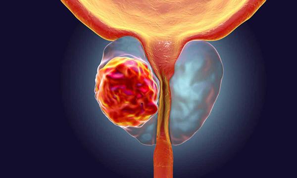 3 ранних симптома, указывающие на рак простаты