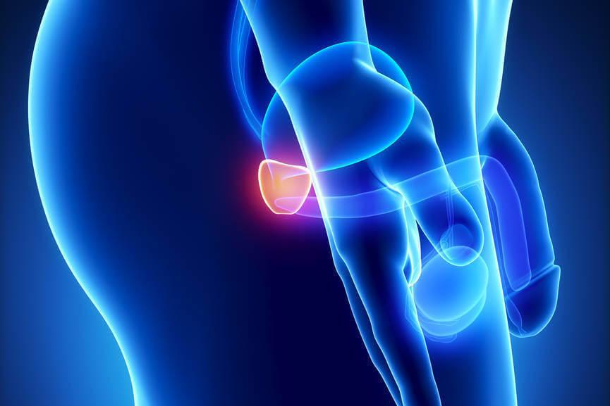Увеличенная простата не является признаком рака
